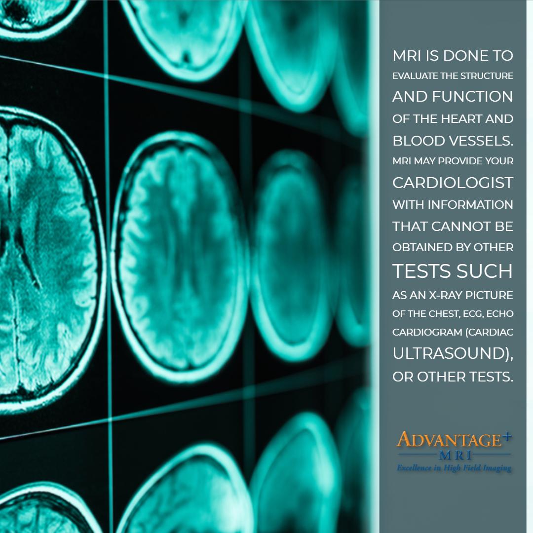 Advantage-MRI-9.11