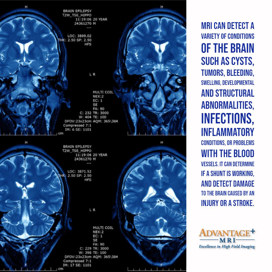 MRI-9.13