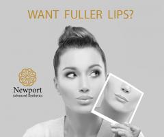 Fuller Lips N.A.